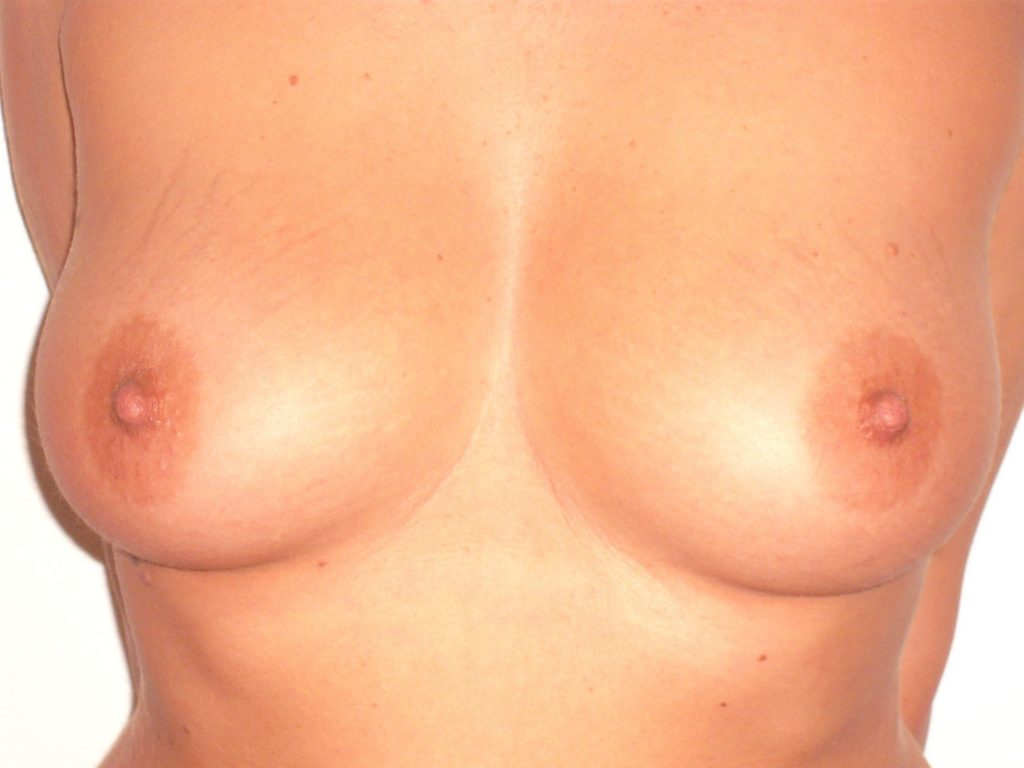 Photo seins aprees compressor